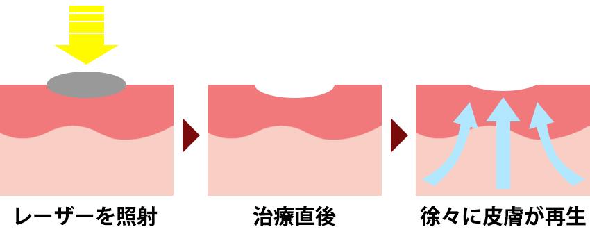 炭酸ガス(CO2)レーザー
